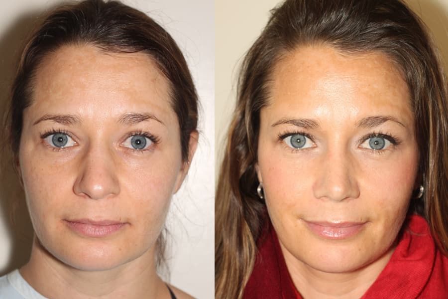 Wide Nose Plastic Surgery Before After photo - 1