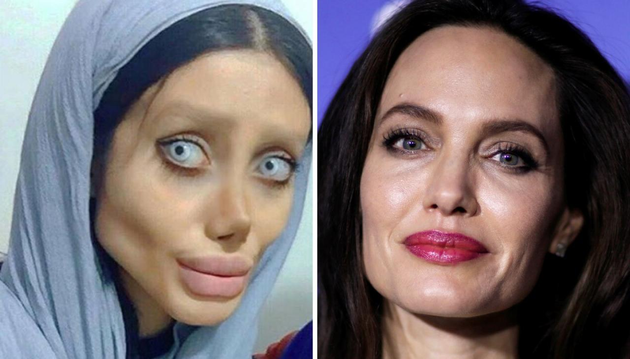 Woman With Angelina Jolie Plastic Surgery Before photo - 1