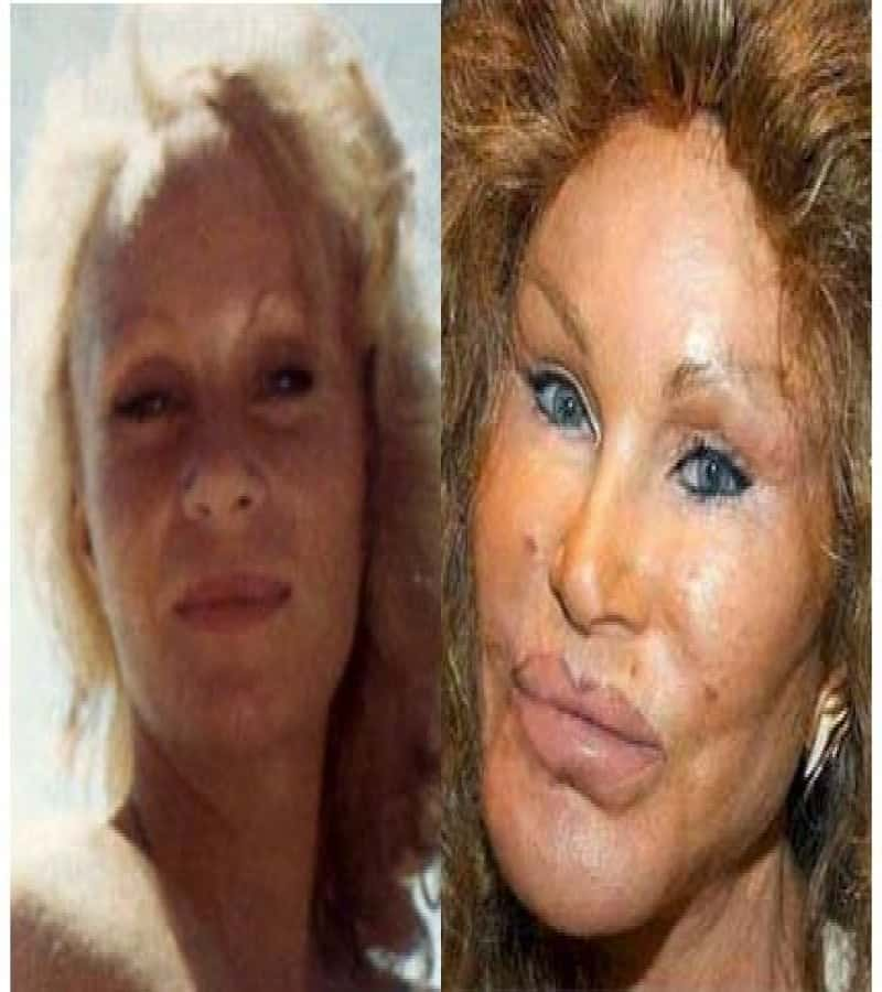 Worst Celeb Plastic Surgery Before And After photo - 1