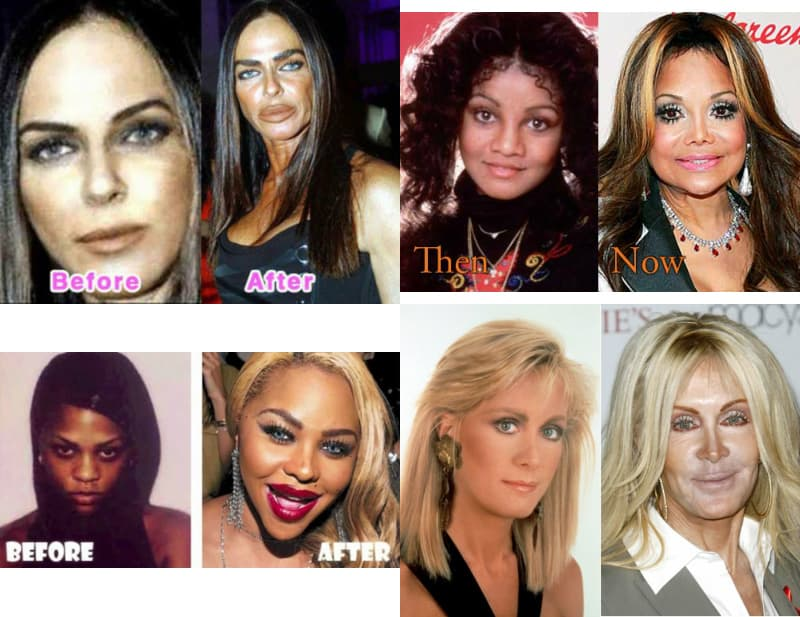 Worst Celebrities Plastic Surgery Before And After photo - 1