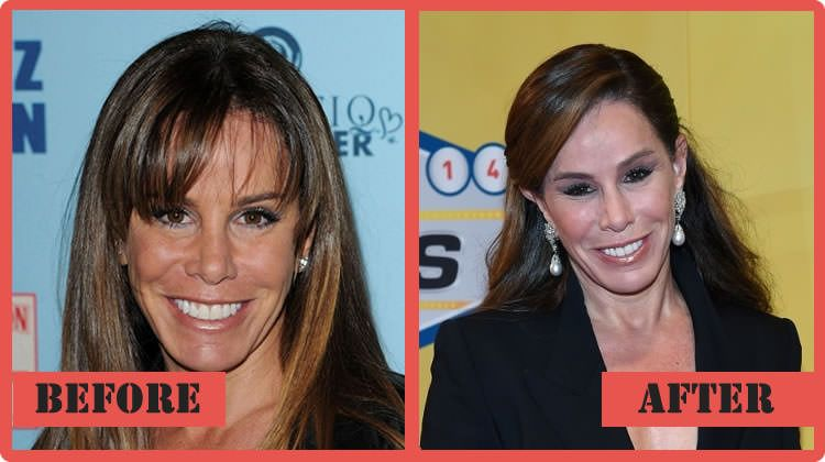 Wright A Jones Plastic Surgery Before And After photo - 1