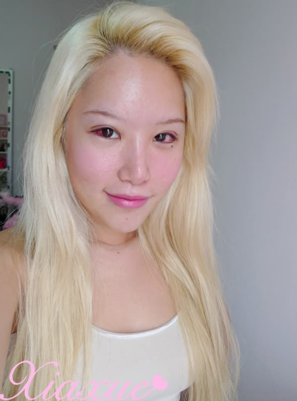 Xiaxue Plastic Surgery Before photo - 1
