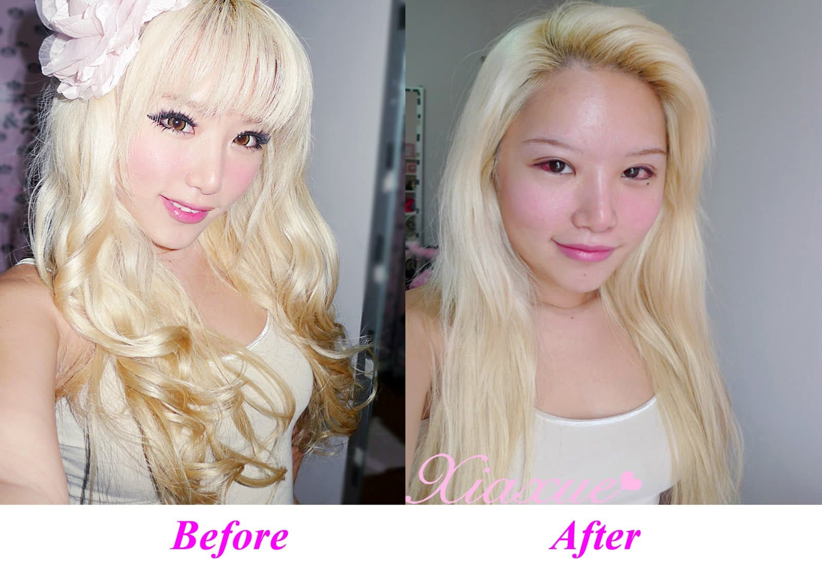 Xiaxue Plastic Surgery Before After photo - 1