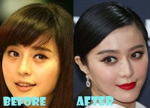 Yang Mi Before Plastic Surgery photo - 1