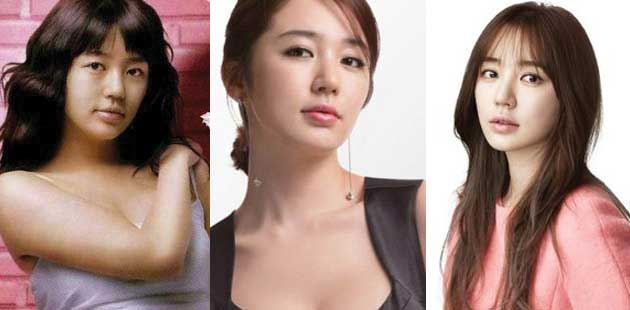 Yoon Eun Hye Plastic Surgery Before And After Pictures photo - 1