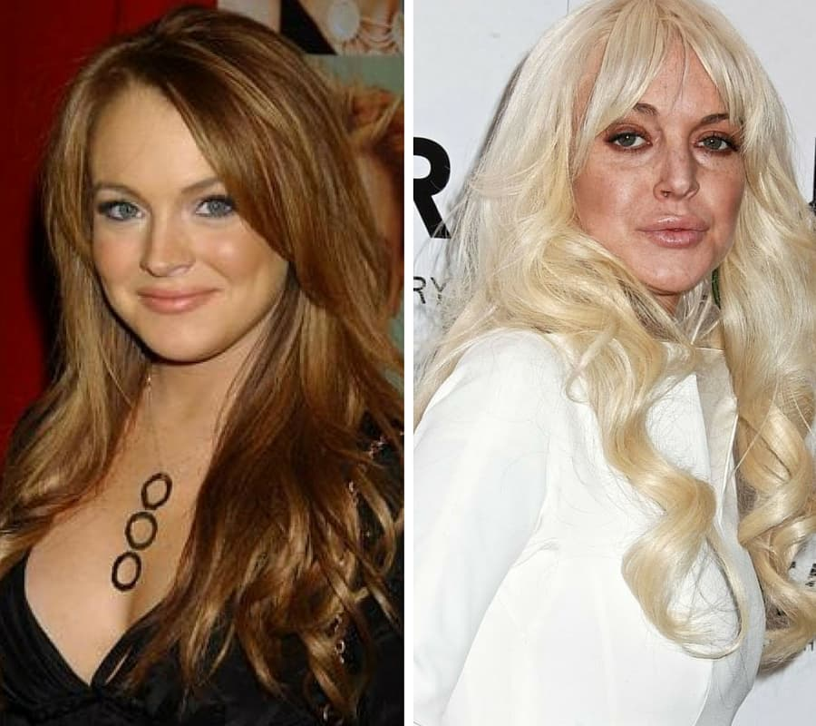 Zara Larsson Before And After Plastic Surgery photo - 1