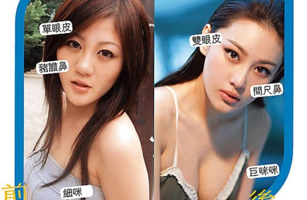 Zhang Xin Yu Before Plastic Surgery photo - 1