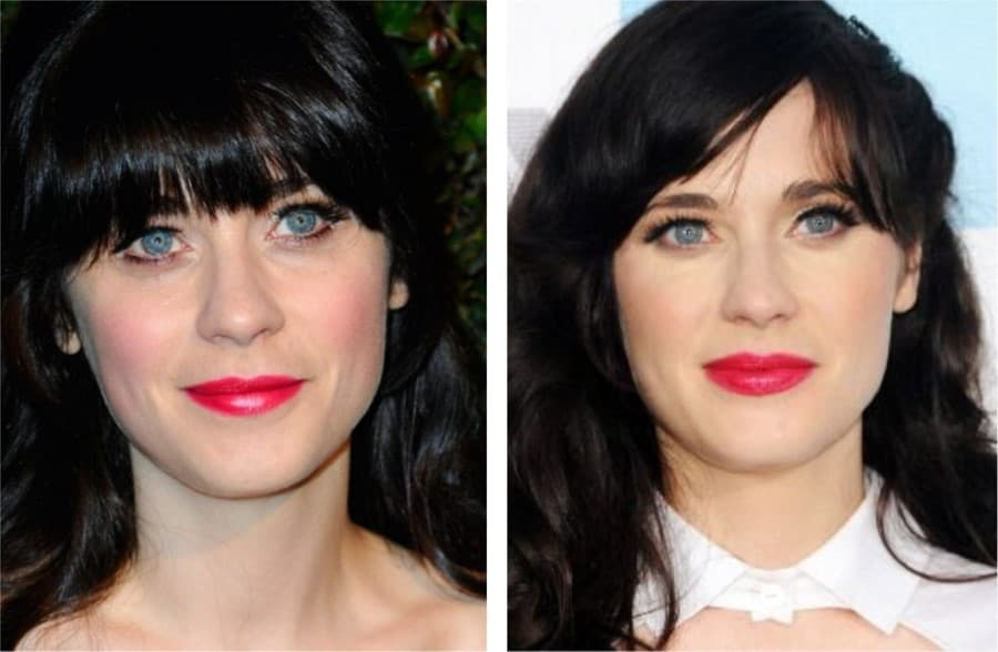 Zooey Deschanel Plastic Surgery Before And After photo - 1