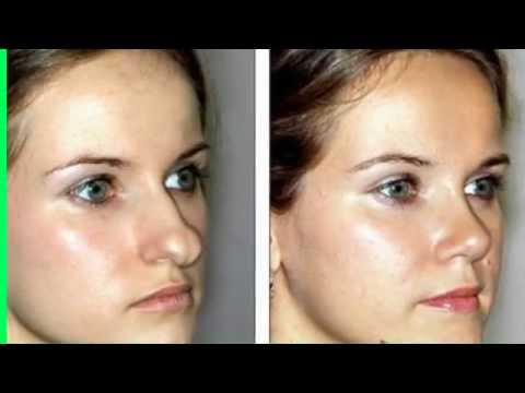 cost of plastic surgery of nose photo - 1