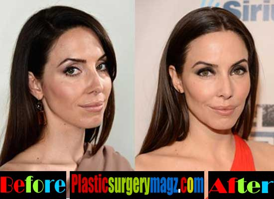 cummings plastic surgery before and after photo - 1