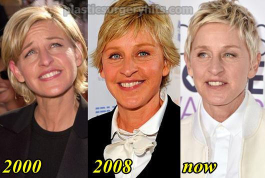 did ellen degeneres get plastic surgery photo - 1
