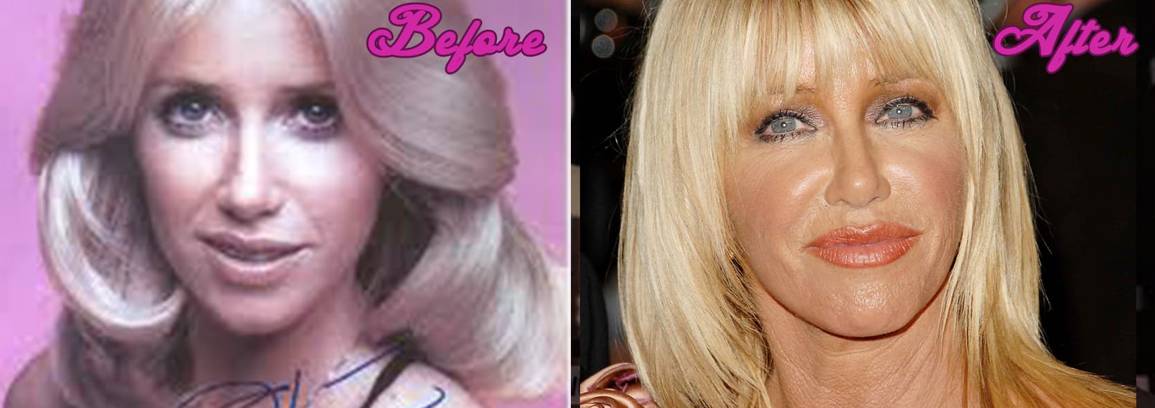 did suzanne somers have plastic surgery photo - 1