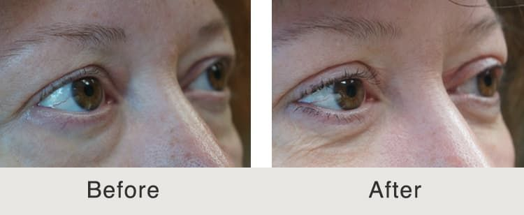 eye bags plastic surgery before and after photo - 1