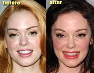 full face plastic surgery cost in india photo - 1