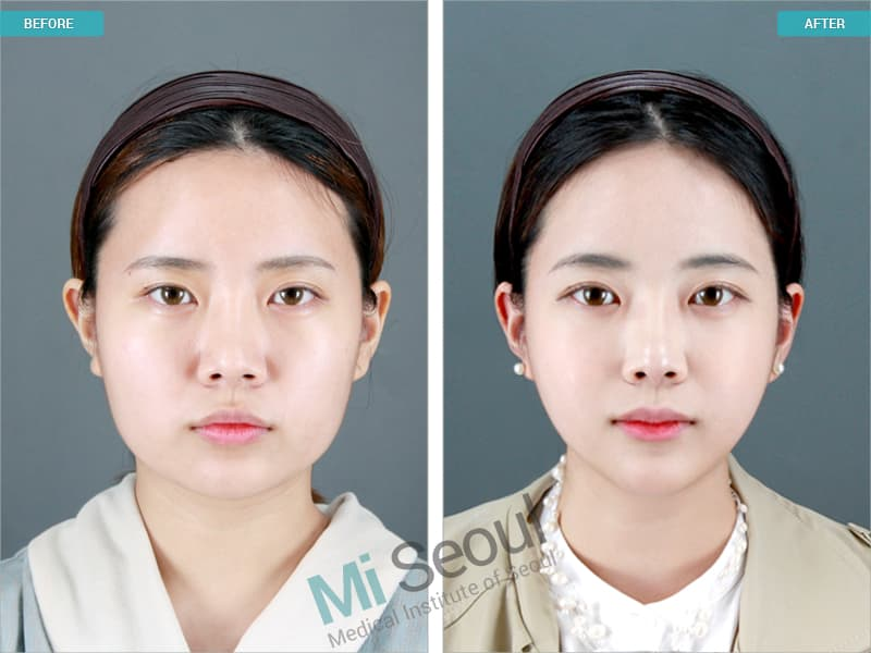 jaw shaving plastic surgery photo - 1