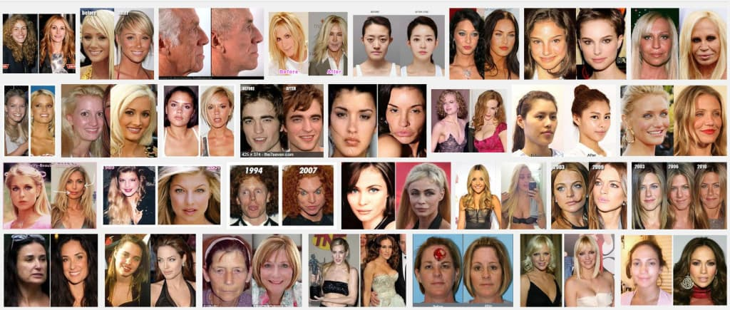 medical vacation plastic surgery photo - 1