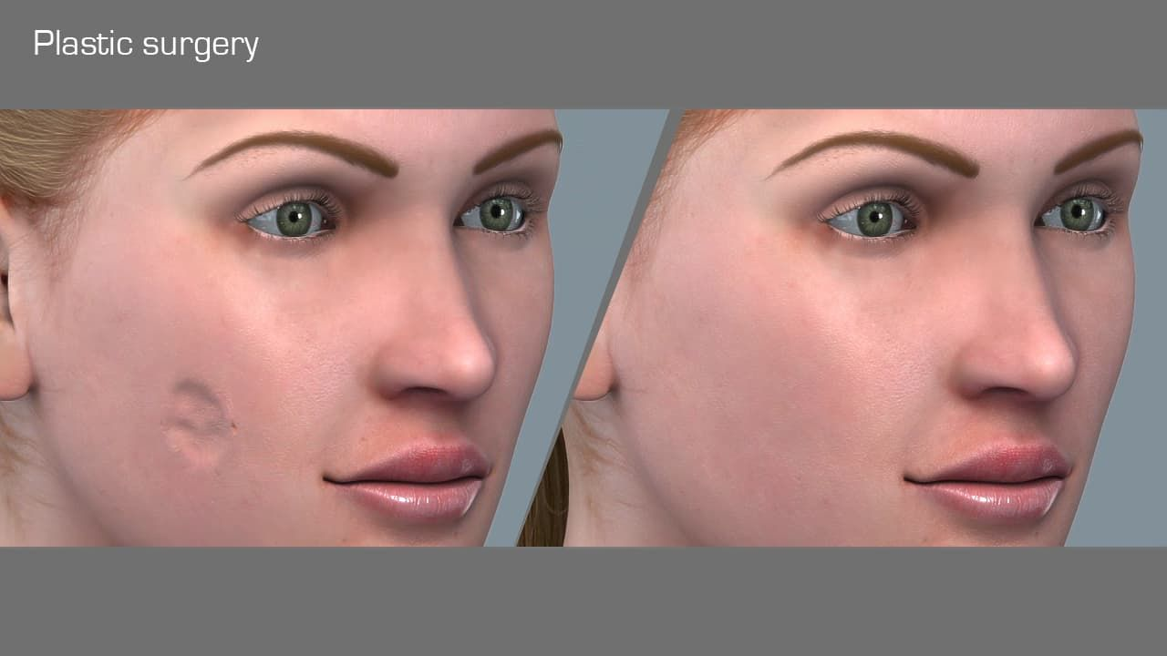 plastic reconstructive and cosmetic surgery photo - 1