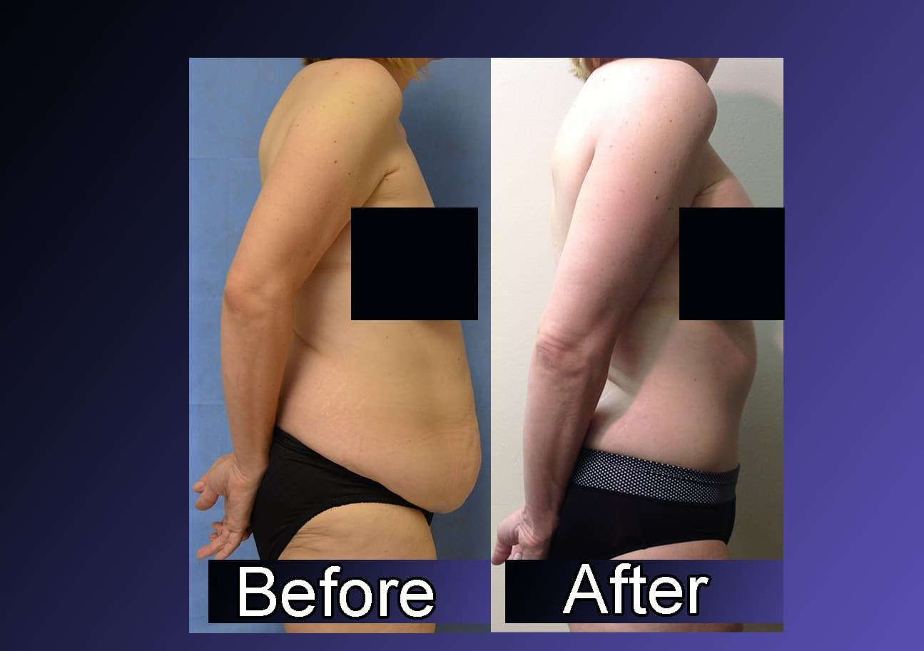 plastic surgery after massive weight loss photo - 1
