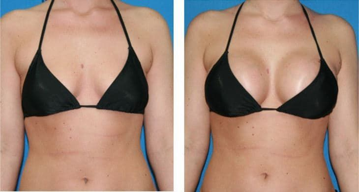 plastic surgery breast enhancement photo - 1