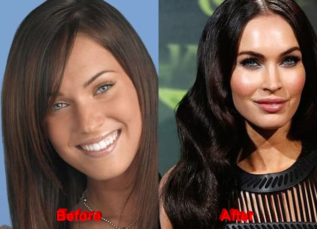 plastic surgery cheeks before and after photo - 1