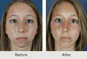 plastic surgery prices nc photo - 1
