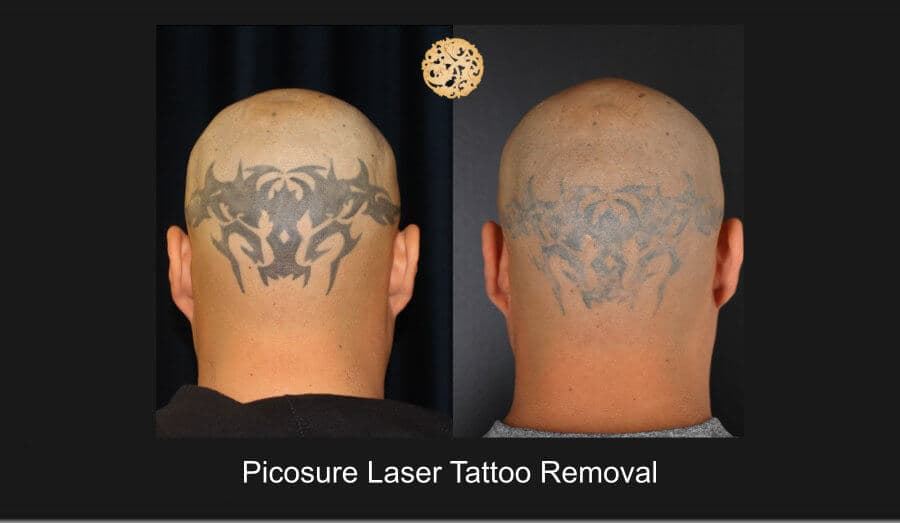 plastic surgery tattoo removal cost photo - 1