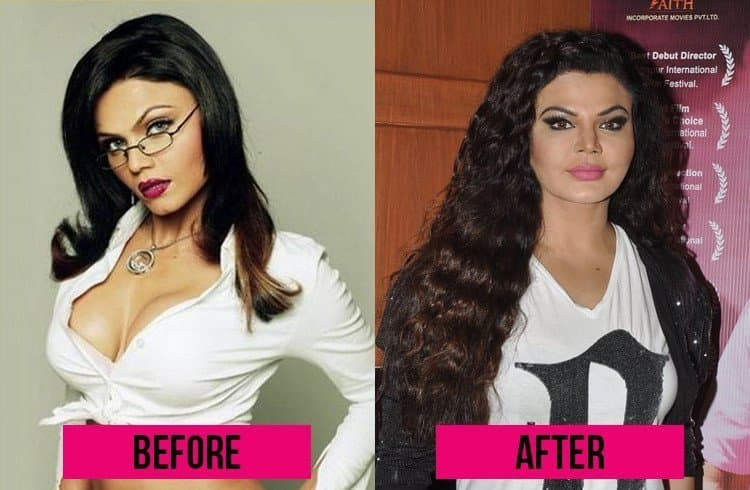 plastic surgery that went well photo - 1