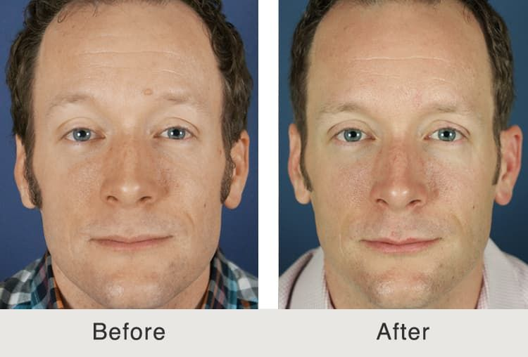plastic surgery to remove mole from face photo - 1