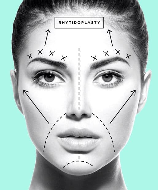 should plastic surgery be banned photo - 1