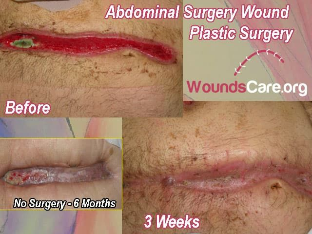 wound plastic surgery photo - 1