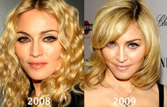 Madonna 2016 Before After Plastic Surgery photo - 1