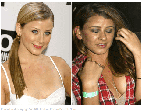 Amy Matthews Before After Plastic Surgery photo - 1