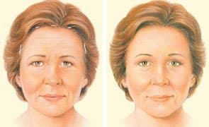 Brow Lift Plastic Surgery Before And After photo - 1