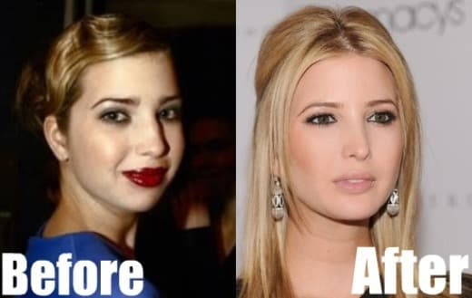 Ivanka Trump Before After Plastic Surgery photo - 1