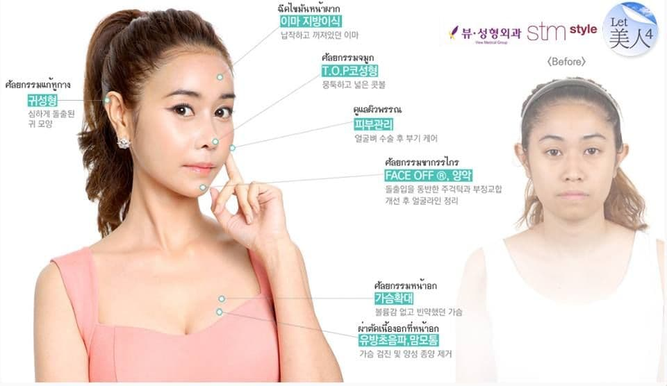 Korean Girls Plastic Surgery Before After photo - 1