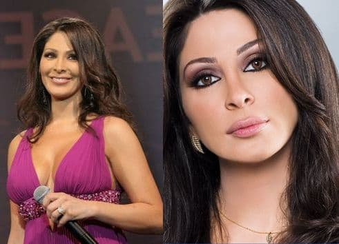 Lebanese Plastic Surgery Before And After photo - 1