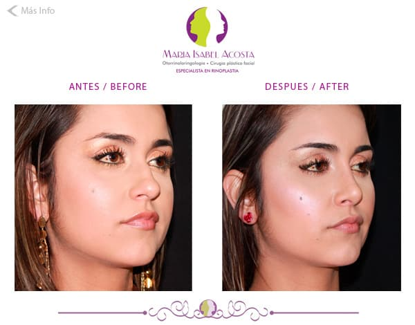 Plastic Surgery Before And After Colombia photo - 1