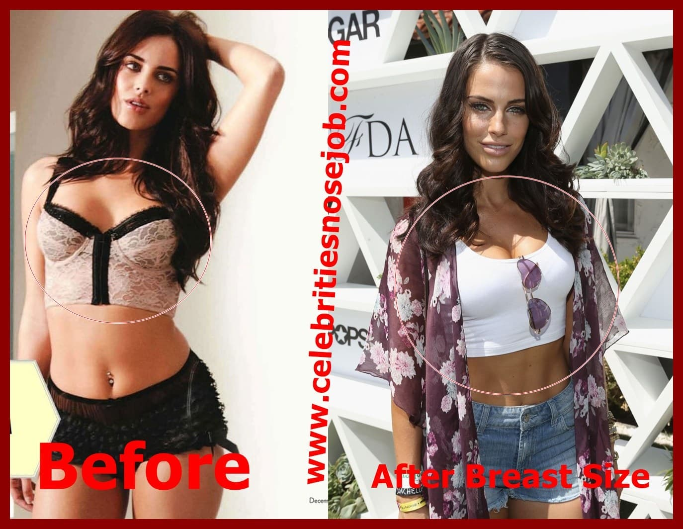 Plastic Surgery Horrors Before And After photo - 1