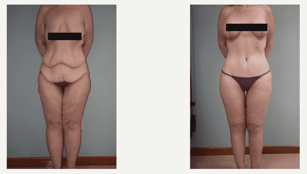 Plastic Surgery Weight Loss Before After photo - 1