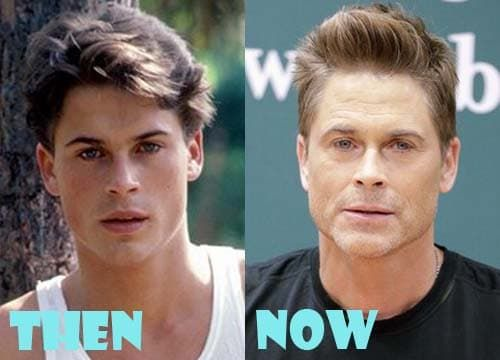 Rob Lowe Plastic Surgery Before And After photo - 1