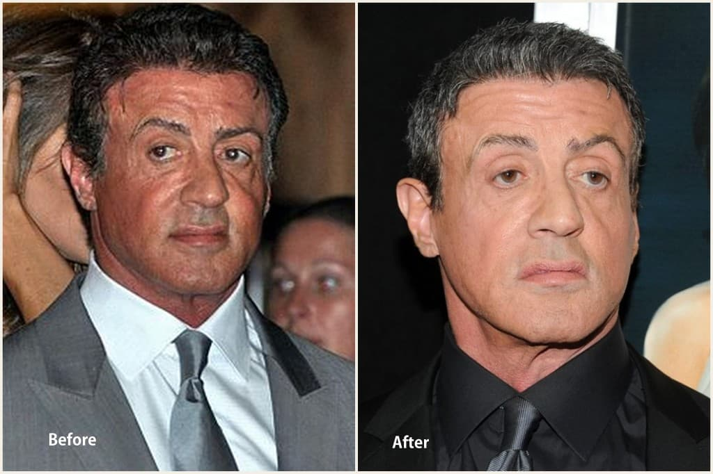 Sylvester Stallone Before Plastic Surgery photo - 1