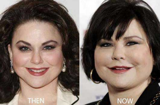 Reba Before And After Plastic Surgery 1