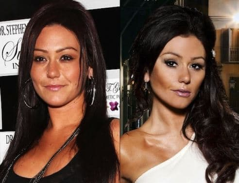 Skin Plastic Surgery Before And After 1