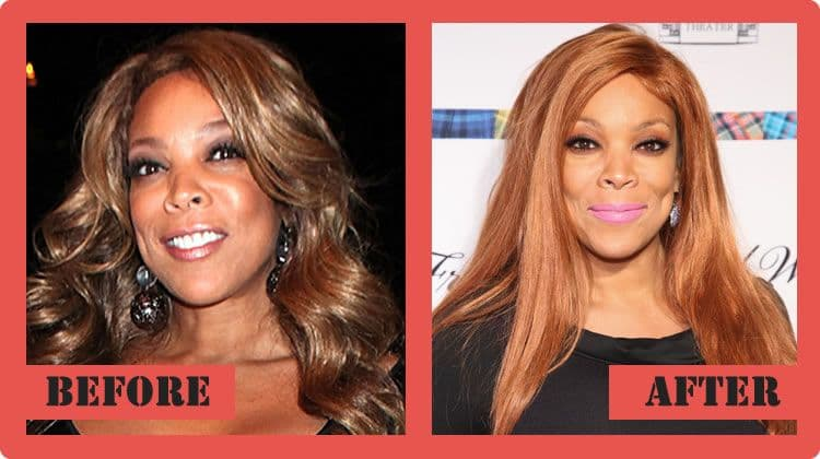Wendy Williams Before Plastic Surgery 1