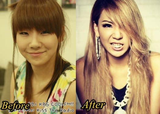 2Ne1 Plastic Surgery Before And After 1