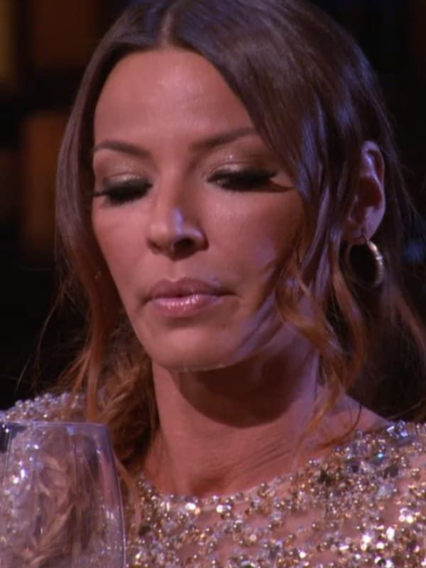 Drita D Avanzo Before Plastic Surgery 1