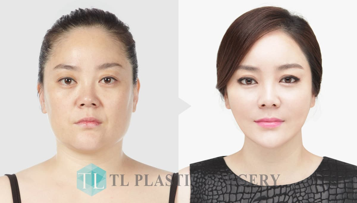 Forehead Plastic Surgery Before After 1