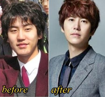 Kwanghee Plastic Surgery Before After 1
