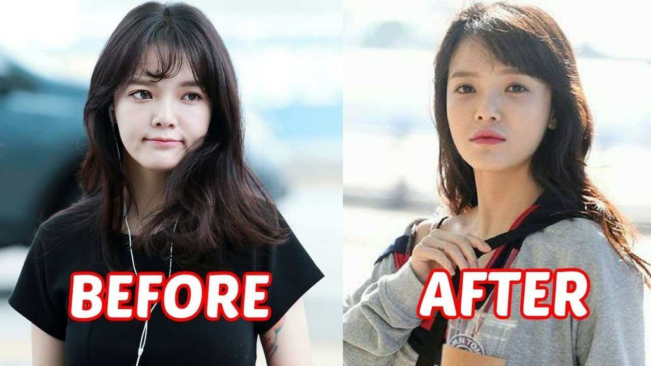 Before And After Plastic Face Surgery 1