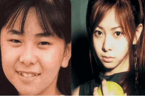 Jpop Plastic Surgery Before And After 1